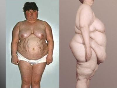 болезнью Иценко-Кушинга диабет
