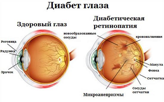 глаз диабет последствия
