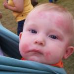 Про аллергию у детей: фото, симптомы, лечение