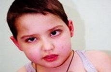 Помощь ребенку при травме глаза