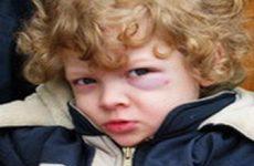 Помощь при ожогах и повреждениях глаза у ребенка