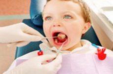 Признаки и лечение стоматита у детей