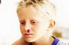 Если у ребенка травма носа