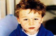 Симптомы и лечение ветряной оспы у детей