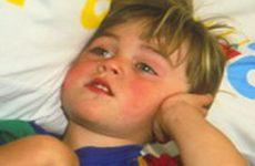 Причины и снятие боли в ухе у детей