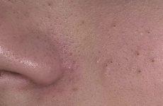 Маски от черных точек на лице