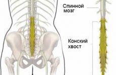 Что такое остеохондроз поясницы
