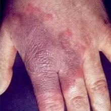 Заболевания кожных покровов