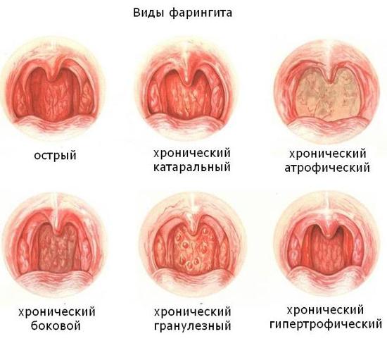 боль в горле фарингит виды типы
