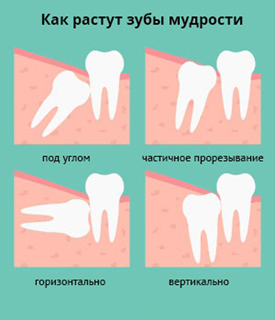 третий моляр прорезание зуба