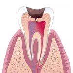 Почему болят зубы и как снять боль