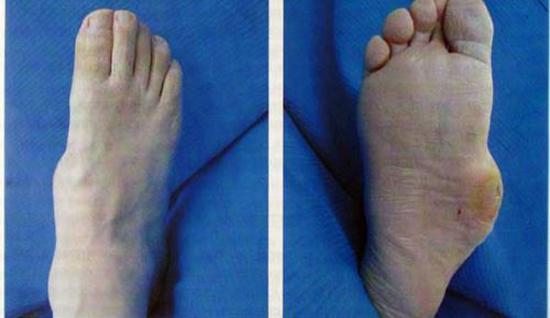 Ноги при сахарном диабете 2 типа