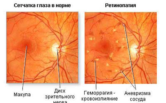 диабет сетчатка глаза