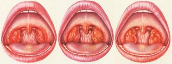 катаральная, лакунарная и фолликулярная ангина
