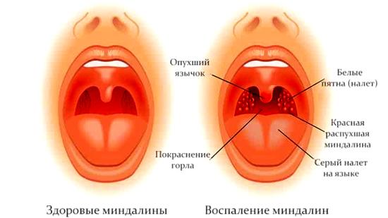 ангины