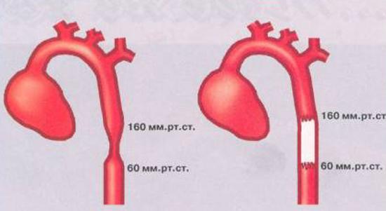 коарктация аорты причина гипертонии