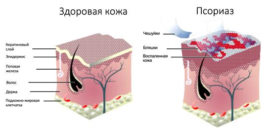 псориаз симптом