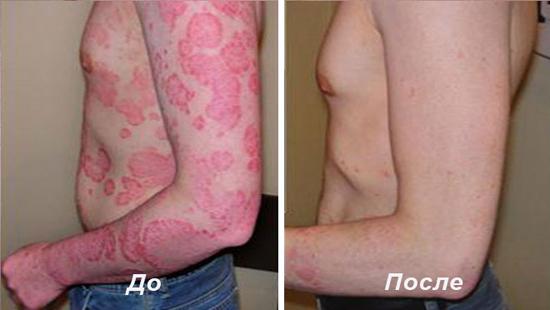 до и после лечения псориаза