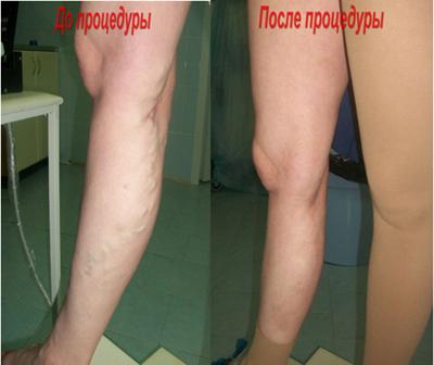 лазеротерапия варикоза
