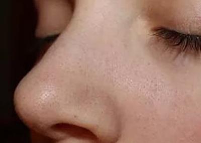 прыщи черные точки на коже лицо