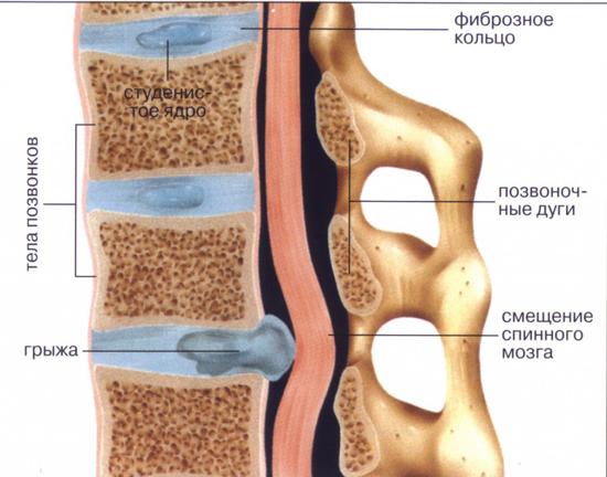 грудной остеохондроз грудной клетки симптомы