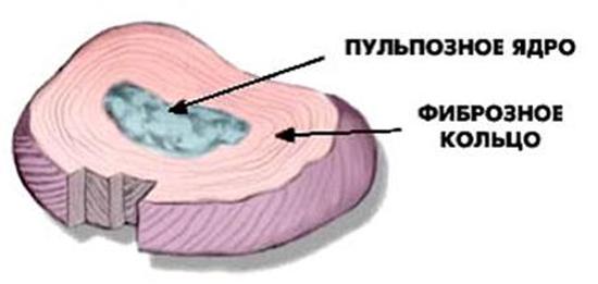 Межпозвонковый диск имеет сложную структуру