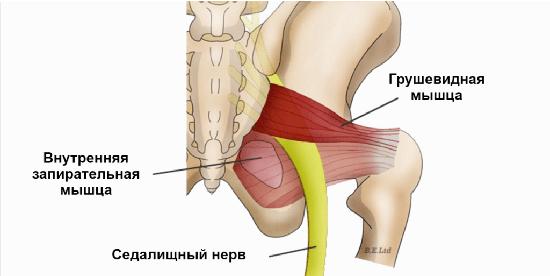 Грушевидная мышца часто повреждается, что приводит к остеоходрозу