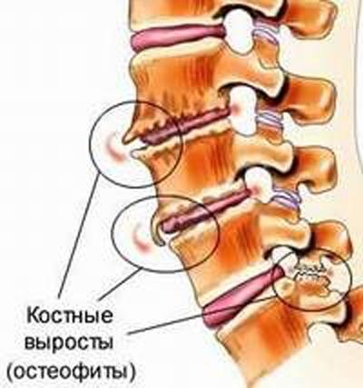 Костные разрастания на позвонках являются причиной болей в спине
