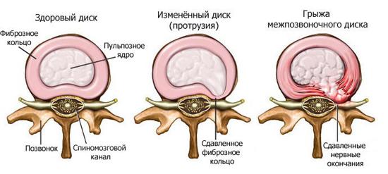 Формирование межпозвонковой грыжи происходит в три стадии