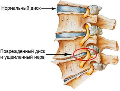 Сдавленный спинномозговой нерв является причиной остеохондрозов.