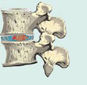 изменения межпозвонкового диска при 1 степени остеохондроза