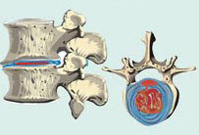 изменения межпозвонкового диска при 2 степени остеохондроза