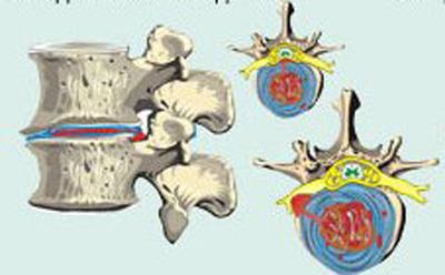 изменения межпозвонкового диска при 3 степени остеохондроза