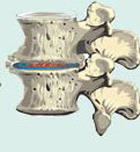 4 степень остеохондроза