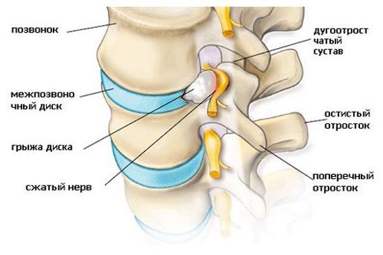 ущемление нерва измененным межпозвоночным диском