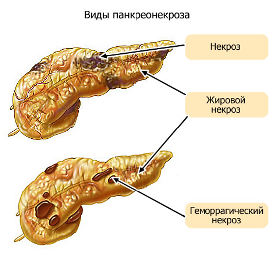 Поражения поджелудочной железы