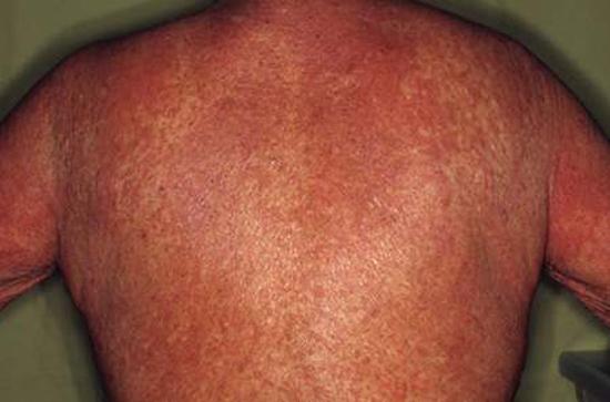 эритродермия псориаз