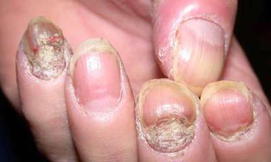 фото псориаз ногтей