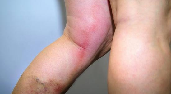 тромбофлебит на ноге осложнения рожи
