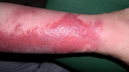 фото рожистое воспаление руки