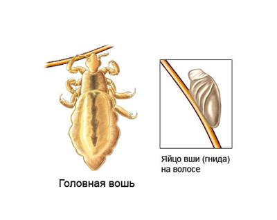 Как избавиться от вшей и гнид бельевых, головных, лобковых: аптечные и народные средства