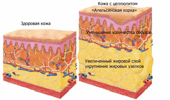 здоровая кожи и кожа с целлюлитом